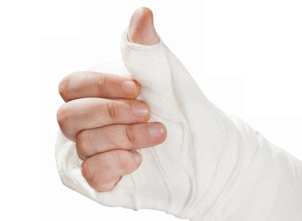 broken arm thumbs up_shutterstock
